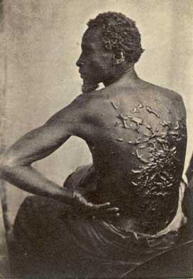 slavescars
